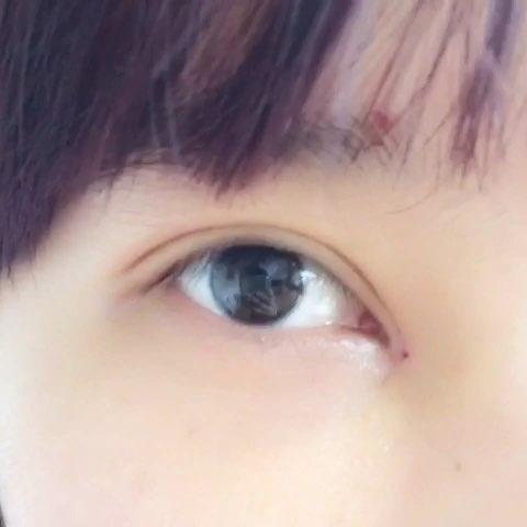 郑州工作室:【韩式无痕全切双眼皮开内眼角上睑下垂矫正】术后祩5天