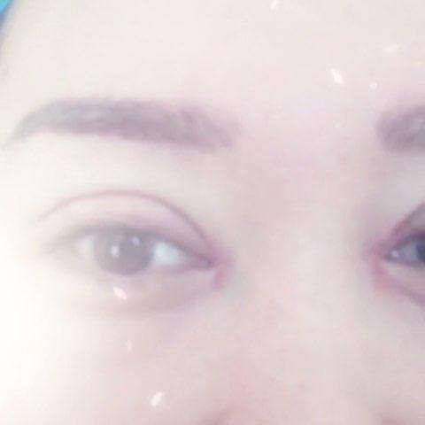 北京微整形##韩式大平行双眼皮##欧式大平行双眼皮图片