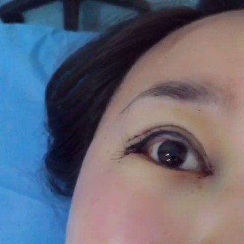 全切双眼皮修复怎么样
