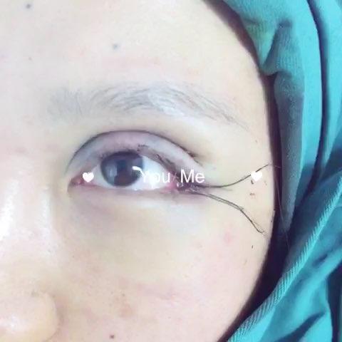芭比欧式双眼皮修复外眼角下至.整个眼睛放大.图片