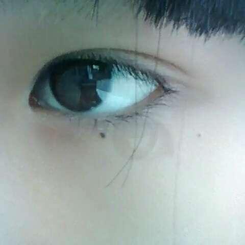 鱼眼球结构图