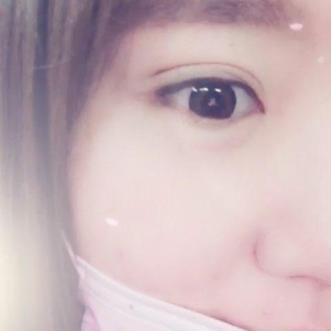 韩式全切双眼皮+无痕内眼角术后当即效果blingbling双眼皮线条流畅