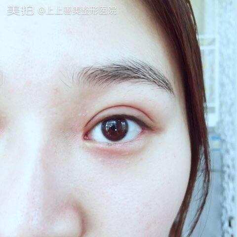 全切双眼皮开内、外眼角 术后半个月~#上上·