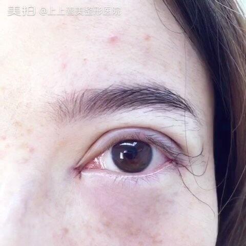 【全切双眼皮开内、外眼角】术前VS术后现场